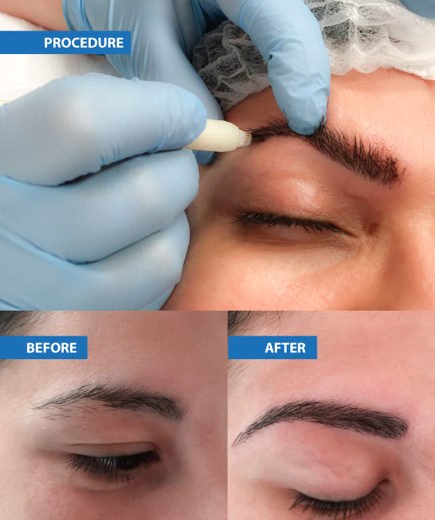 628x750-microblading-images